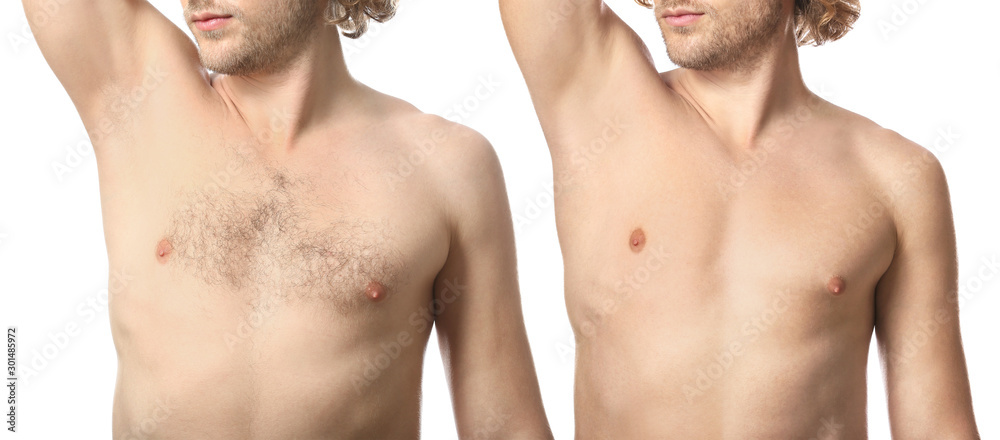 Fototapeta Young man before and after depilation on white background