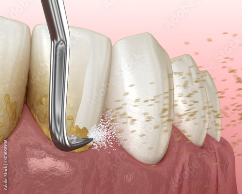 Oral hygiene: Scaling and root planing (conventional periodontal therapy) Wallpaper Mural
