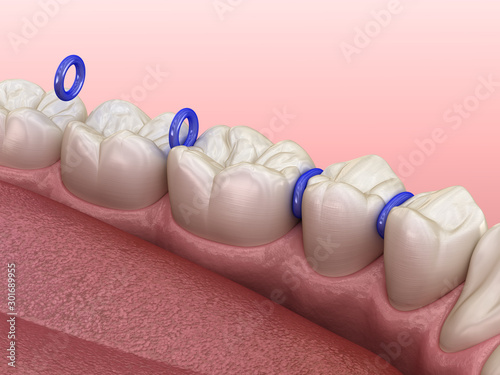 Rubber separator between teeth, preparation for braces placement Wallpaper Mural