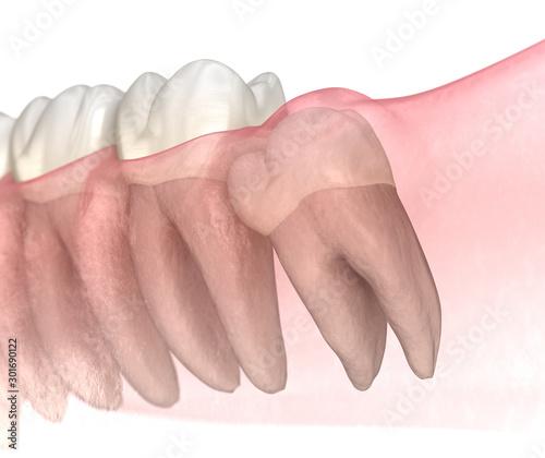 Cuadros en Lienzo Mesial impaction of Wisdom tooth