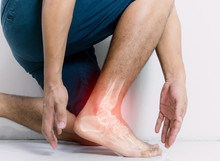 Inflammation Bone Ankle Of Humans With Inflammation