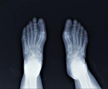Radiography Of The Foot By Arthritis Phenomena, Medical Diagnostics, Traumatology And Orthopedics, Rheumatology