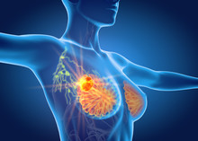 Breast Cancer With Lymphatics,...