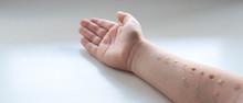 Pediatric Allergy Skin Test On...