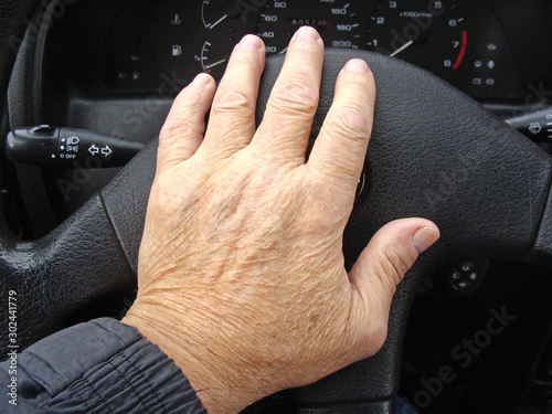 Fotografija  Deformed fingers 2