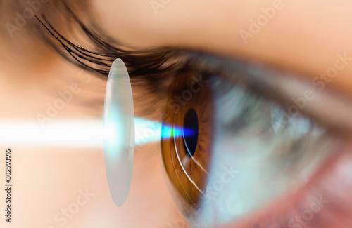 Cuadros en Lienzo Young girl having eye test eye test machine
