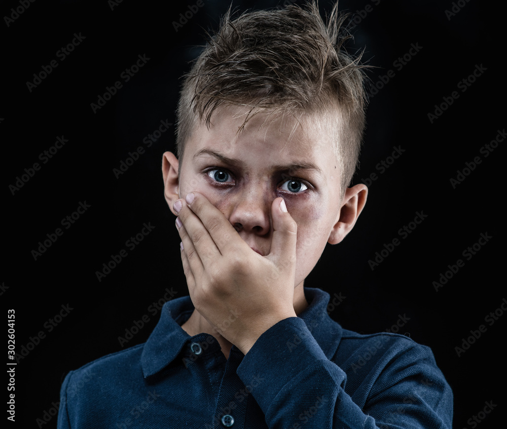 Fototapety, obrazy: Scared boy victim of domestic violence with bruises on his face looking at camera and closed his mouth with hands. Isolated on dark background