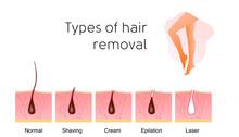 Comparison Of The Popular Methods Of Hair Removal: Shaving, Cream, Epilator, And Laser. Anatomy Infographics Vector Illustration. Beautiful Legs.