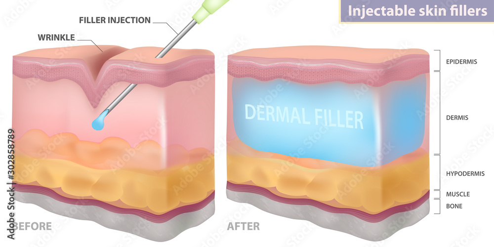 Fototapety, obrazy: Injection filler injection under the skin, vector illustration