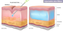 Injection Filler Injection Under The Skin, Vector Illustration