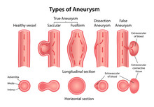 Types Of Aneurysm: True Aneurysm (Saccular, Fusiform), False And Dissection Aneurysms. Longitudinal And Horizontal Sections Of Blood Vessels. Blood Flow Direction Indicated. Vector Illustration