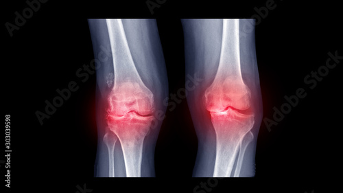 Valokuvatapetti Film X ray knee show rheumatoid arthritis disease (RA knee disorder) with Windswept deformity (Varus deformity on right knee and Valgus on left side)