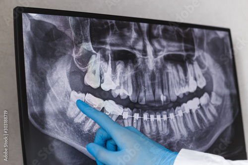 Fotografia Doctor points wisdom tooth in dental x-ray.