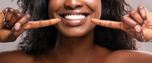 Unrecognizable Black Woman Pointing At Her Healthy White Teeth, Closeup