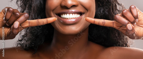 Fotografia Unrecognizable black woman pointing at her healthy white teeth, closeup