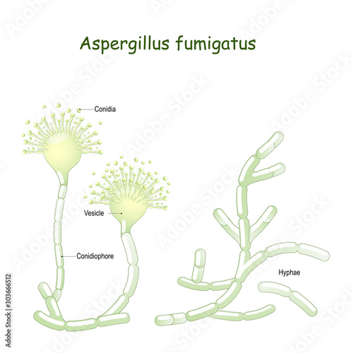 Fotografie, Obraz Aspergillus fumigatus is  a type of fungus causes aspergillosis