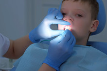 Dentist Making Fluoridation Of Child Boy Teeth After Cleaning For Protection. Doctor Hygienist Applying Fluoride To Teen Teeth With Brush In Dentistry. Covering Teeth With Fluoride Gel. Cure Concept.