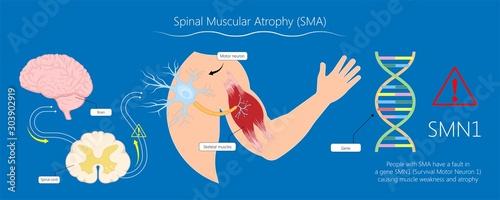 Spinal muscular atrophy SMA genetic disorder Fototapet
