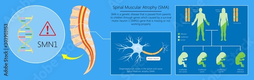 Spinal muscular atrophy SMA genetic disorder Canvas Print