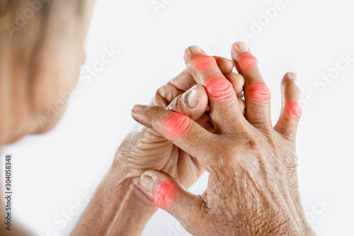 Photo Asian woman hand suffering from joint pain with gout in finger