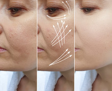 Woman Wrinkles Face Before And After Treatment Arrow