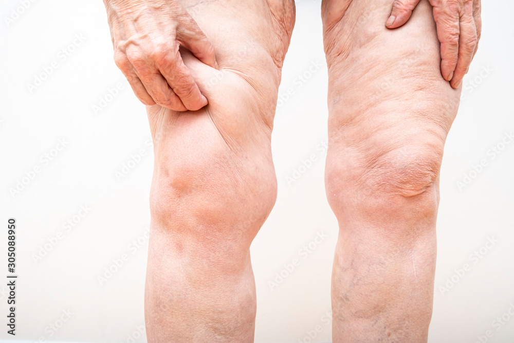 Fototapeta A senior woman holding, pulling a lot of excess loose skin on legs after weight loss, gastric bypass surgery