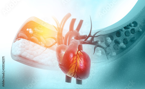 Cholesterol blocked artery with heart.3d illustration Canvas Print