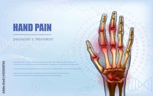 Photo Osteoarthritis rheumatoid arthritis hand sore joints concept