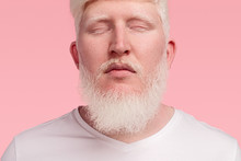 Calm Adult Albino Man With Clo...