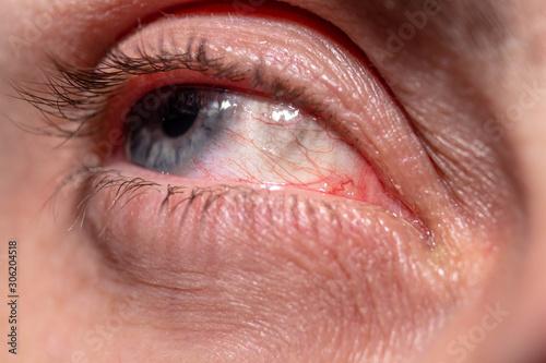 Obraz na plátně  Red capillaries of an inflamed eye near