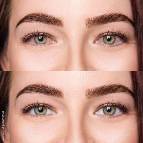Irritated female eyes with redness before and after treatment. Canvas Print