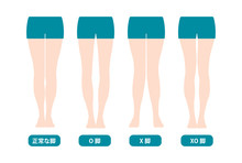 Difference Types Of  Legs Angl...