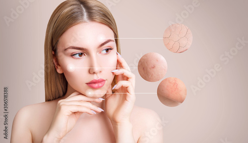 Photo Magnifying circles demonstrate couperose and acne on face skin of young woman