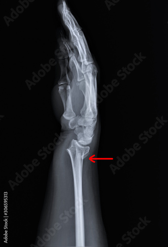 Fotografia, Obraz radiography of forearm and wrist bones   with a fracture of the distal radius, T