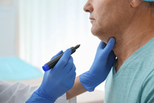 Surgeon With Marker Preparing Man For Operation In Clinic, Closeup. Double Chin Removal