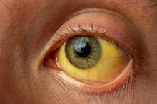 Yellow Staining Of The Sclera ...