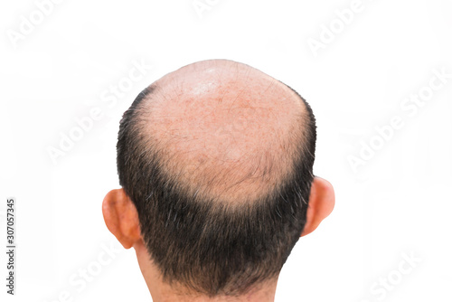 Photo Glabrous on Male Bald head isolated on white background