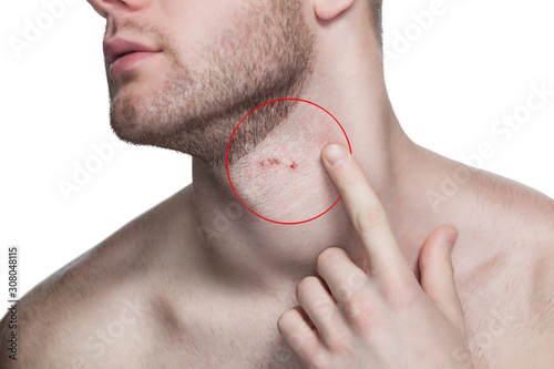 The man shows a cut and irritation on the skin of the neck after shaving his beard and cutting his mustache in a barbershop Billede på lærred