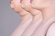 Double Chin, Skin Rejuvenation...