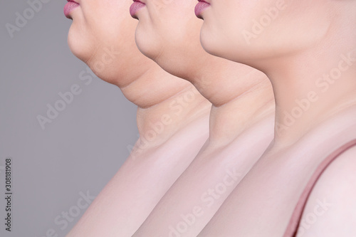 Double chin, skin rejuvenation on the neck, before after anti aging concept Canvas Print