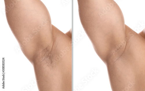 Photo Collage of man showing armpit before and after epilation on white background, cl