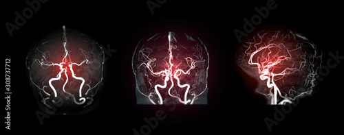 Photo Collection of MRA brain or Magnetic resonance angiography image ( MRA ) of cerebral artery in the brain for detect stroke disease