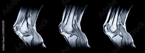 Photo Magnetic resonance imaging (MRI) of right knee