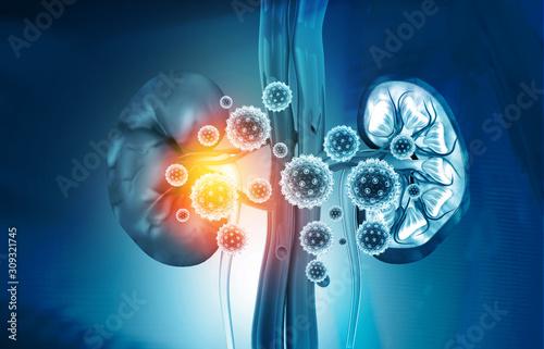 Fototapety, obrazy: Kidney disease concept. 3d illustration.