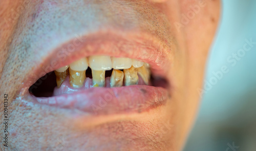 Stampa su Tela Old and worn-out elderly teeth