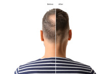 Man Before And After Hair Loss...