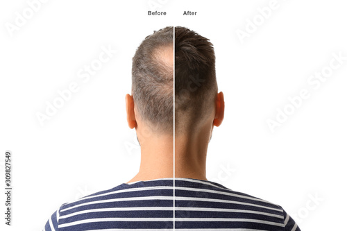 Obraz Man before and after hair loss treatment on white background - fototapety do salonu