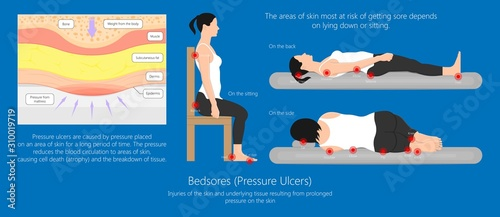 Bedsores (pressure ulcers) injuries skin underlying tissue from lying down or si Canvas Print