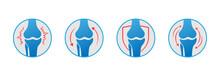 Knee Bones Vector. Human Bone And Joint Icon Set. Rheumatology And Traumatology, Vector Design And Illustration.