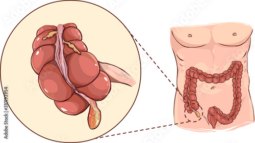 Photo Vector illustration of a with detail of an appendicitis